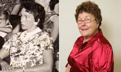 Timmie Jean Lindsey, first person to undergo Breast Augmentation in 1962